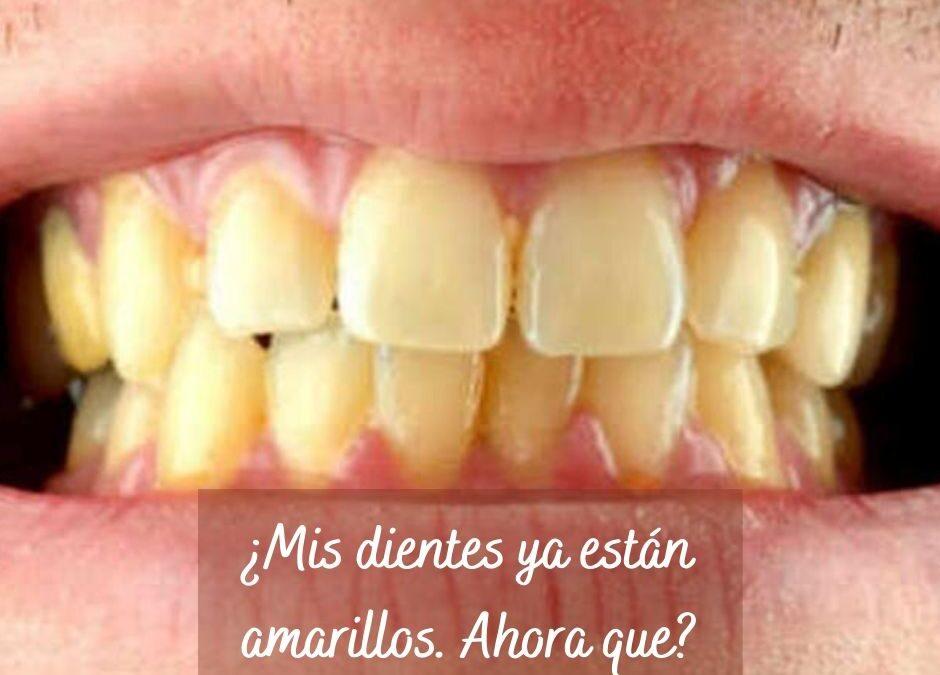 ¿Mis dientes ya están amarillos, ahora qué?
